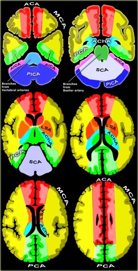 Territorios Vasculares Cerebrales | anatomiahumana.info