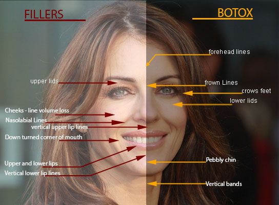 At home botox details on diy injectables erase your age with botox at home botox details on diy injectables solutioingenieria Choice Image