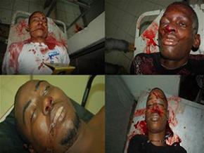 Versión policial sobre los acribillados a tiros en Mata Los Indios Villa Mella pocos la creen