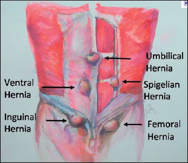 gallstones pain treatment