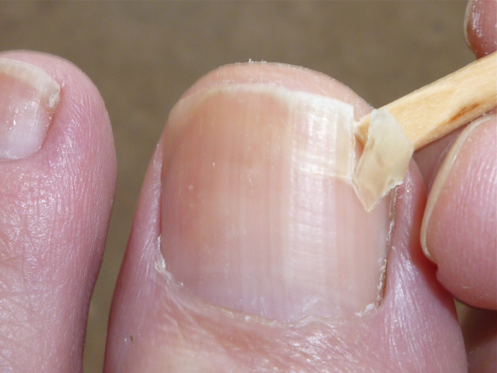 fingernail separated from nail bed #10
