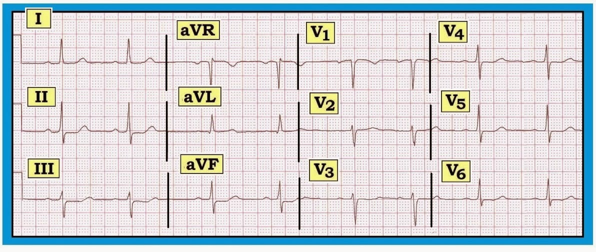 ecg interpreation Electrocardiography (ecg or ekg) ecg interpretation is a component of many healthcare fields (nurses and physicians and cardiac surgeons being the most obvious.