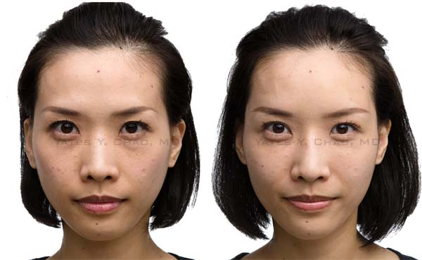 玻尿酸全臉雕塑、豐額、豐頰、淚溝、蘋果肌,趙彥宇醫師