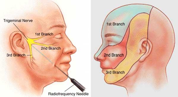 Treatment for facial neuralgia