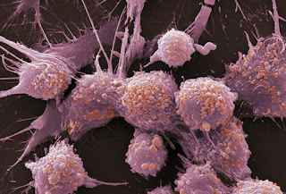 Clinical Trial Shows Gene-Targeted Drug Can Treat Prostate Cancer