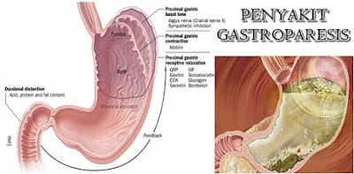 Obat Herbal Gastroparesis Paling Ampuh