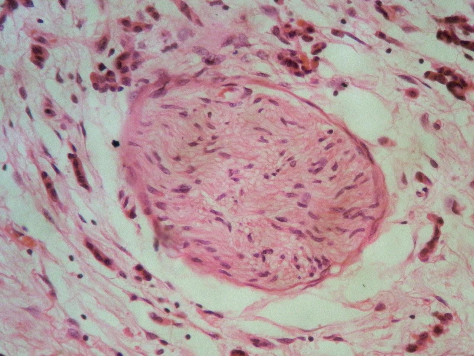 breast carcinosarcoma