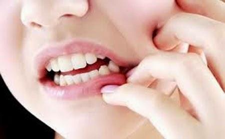 Apakah Sakit Gigi Selalu Dicabut