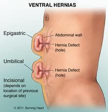 Qué es una hernia