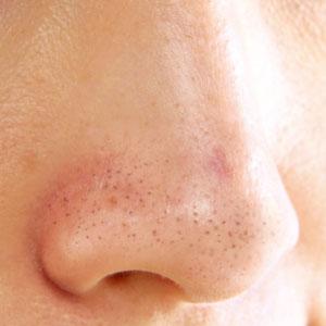 Cara Menghilangkan Bintik Hitam di Hidung