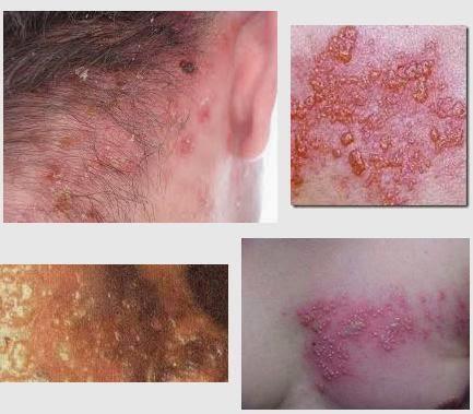 Penyakit Herpes Labialis