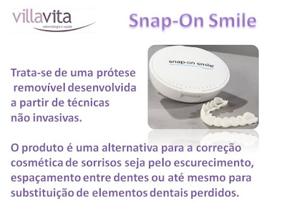 Slide2 - Snap-On Smile: O sorriso de Hollywood