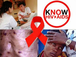 penyakit hiv/aids