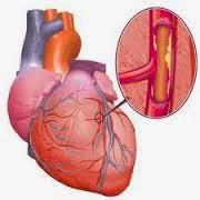 Pengobatan alternatatif untuk Jantung Bengkak