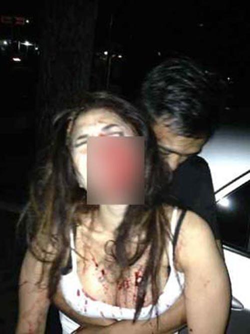 Gambar Model Seksi Indonesia, Nikita Mirza Berdarah Di Belasah