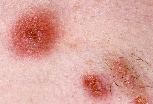 MRSA Skin Infection: Symptoms