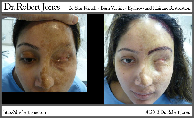 Burn Victims Eyebrow And Hairline Restoration Performed Drbert