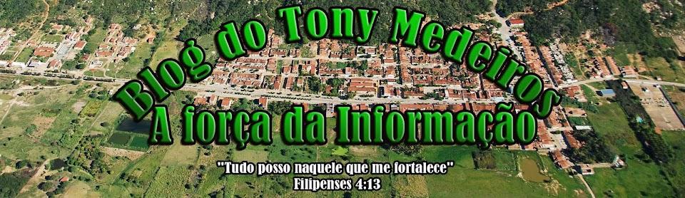 Tony Medeiros