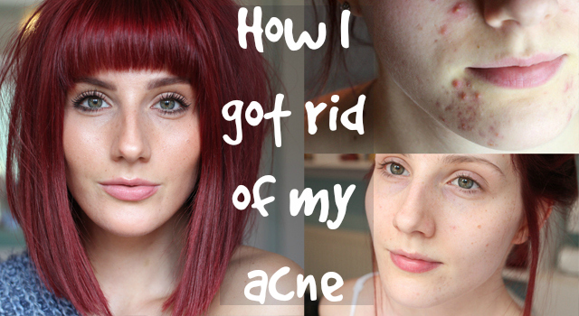 A Blog post and video on how I got rid of my acne, including a free consultation, skincare and treatment with before and after pictures