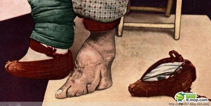 ancient chinese foot binding essay The ancient chinese custom of footbinding essays related to chinese footbinding 1 the act of foot binding by chinese women is a undeniable sign of.