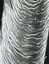 Normal Porosity