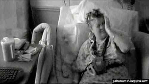 Wanita Ini Mengalami Penyakit Aneh Tangannya Menampar Dirinya Sendiri