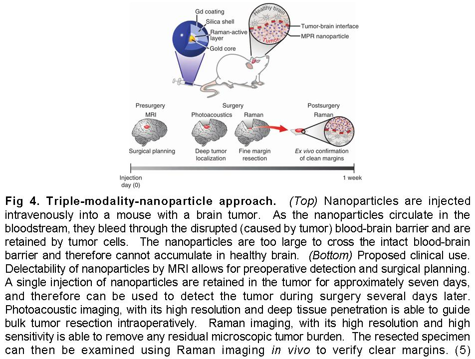 Scientists create nanoparticles that image brain tumors