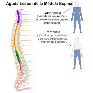lesion medula espinal