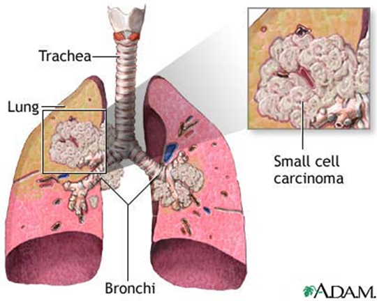 small cell lung cancer Lung cancers are generally divided into two categories: small cell lung cancer and non-small cell lung cancer that's because they tend to behavior differently most small cell cancers start in the lung but they can first be discovered elsewhere in the body—for example in the bowel, bladder or prostate.