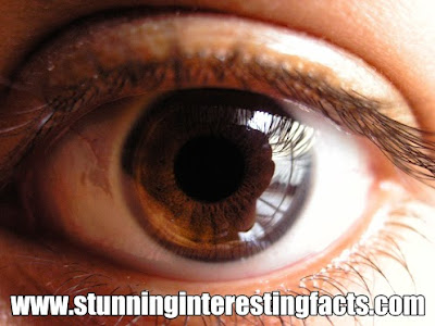 cataracts-naturally-surgery