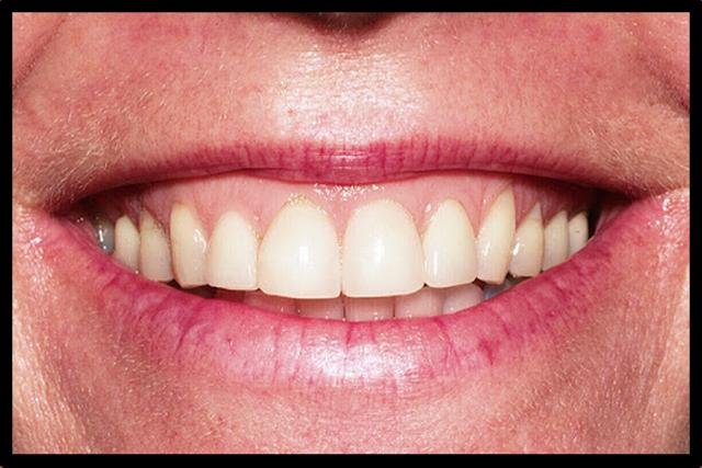 perfect smile veneers для мужчина