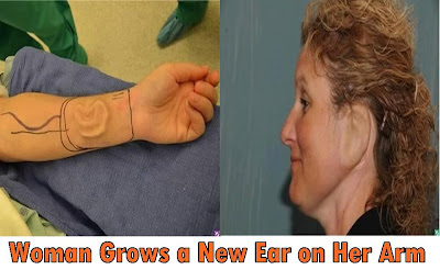 The woman who grew a new ear on her arm