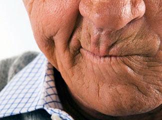 Gejala dan tanda awal serangan stroke