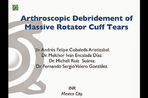 Arthroscopic Debridement of Massive Rotator Cuff Tears