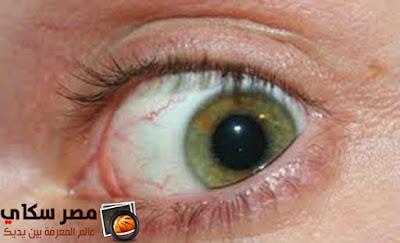 مرض جفاف العين وأسبابة وأعراضة Dry eyes