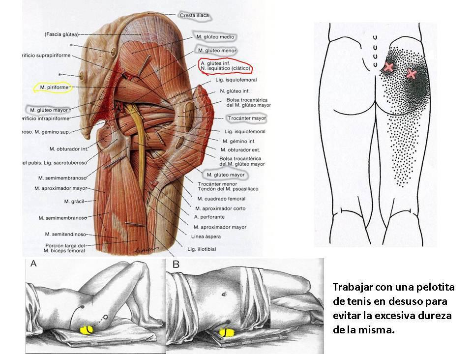 La osteocondrosis sheynogo y el departamento de pecho de la columna vertebral el tratamiento de la c