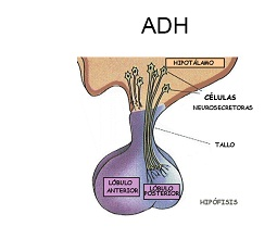 Alteración de la homeostasis del agua hipofisaria