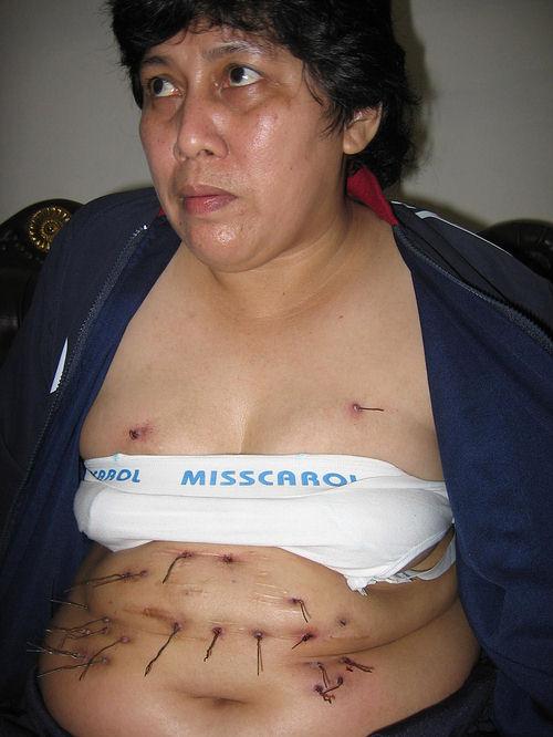 pelos, metal, abdomen, estómago, enfermedad