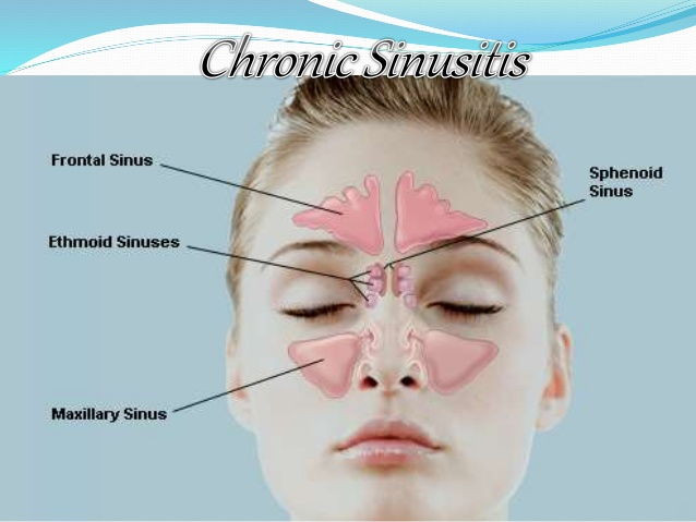 how to manually drain your sinuses