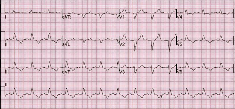 Common ECG finding may indicate serious cardiac problems | Harvard ...