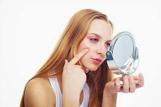 Myths about the causes of acne