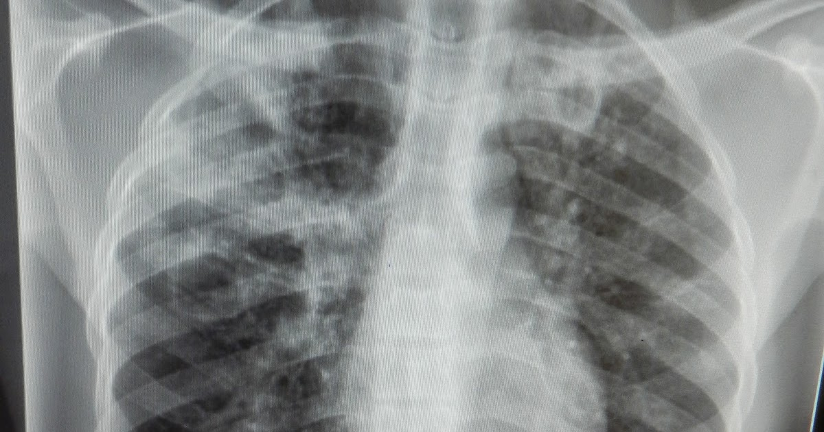 BrandpointContent - The different faces of tuberculosis: A