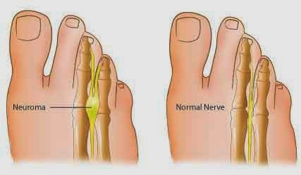 MORTON'S NEUROMA TREATMENT and EXAMPLE