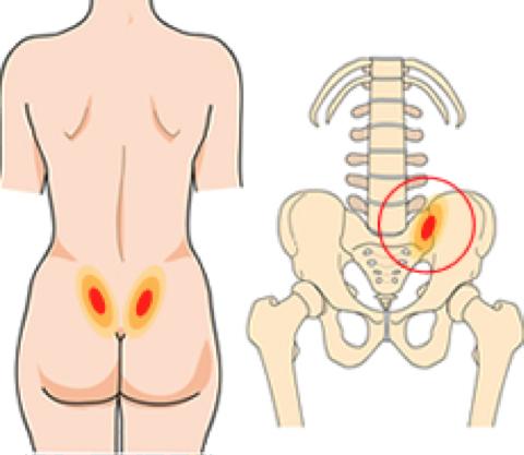 lage rugpijn rechterkant