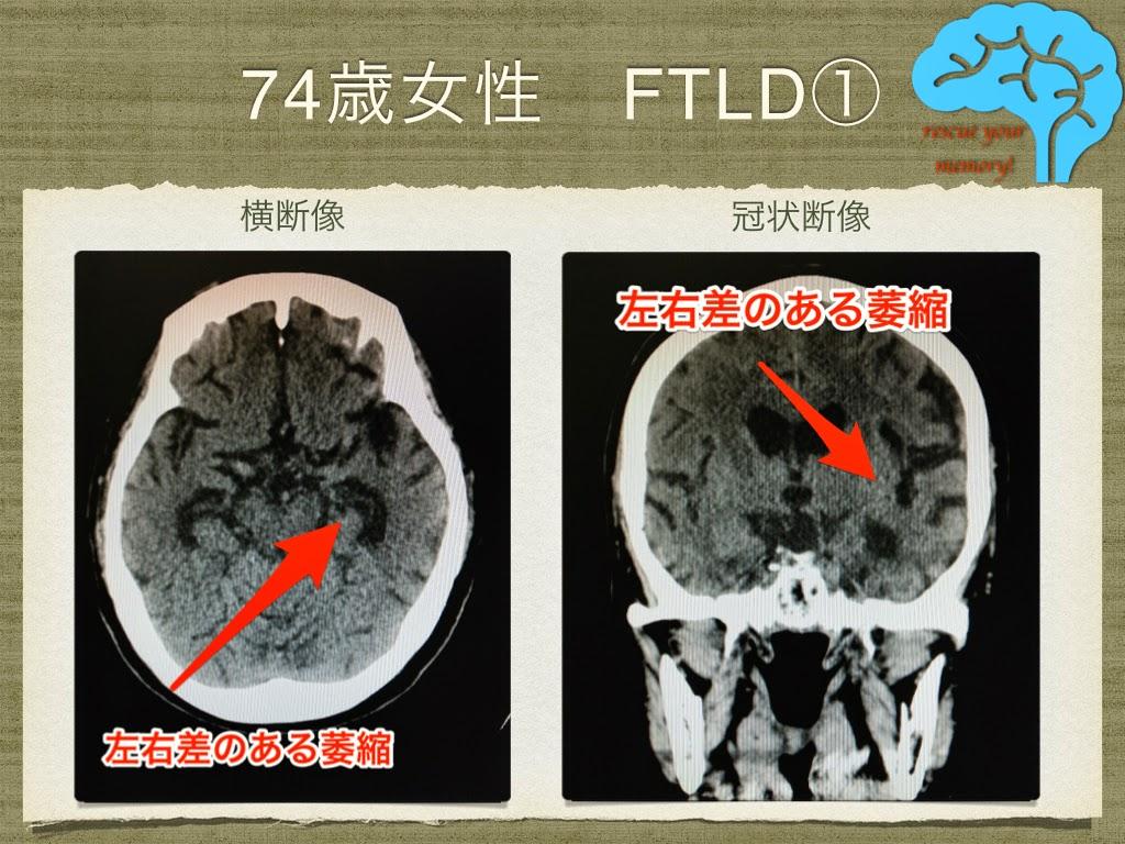 前頭側頭葉変性症 74歳女性 ピック病 頭部CT