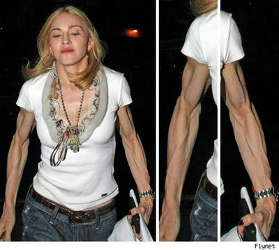 chatter busy madonna surgery