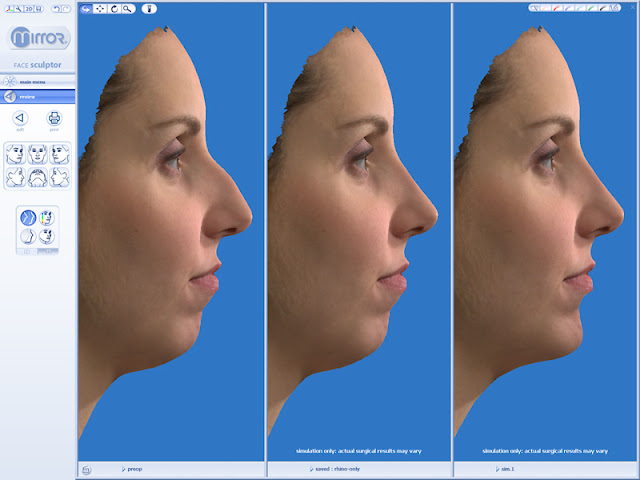 3D Plastic Surgery Simulator