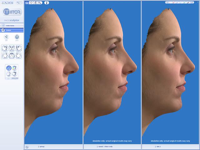 3D Plastic Surgery Simulator