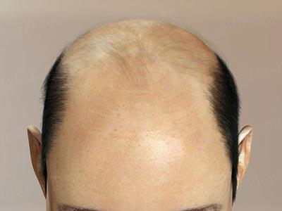 dht and hair loss Thinning Hair Advice For Men And Women Of All Ages