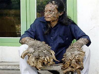 most horrible weirdest strangest diseases tree man dede indonesia